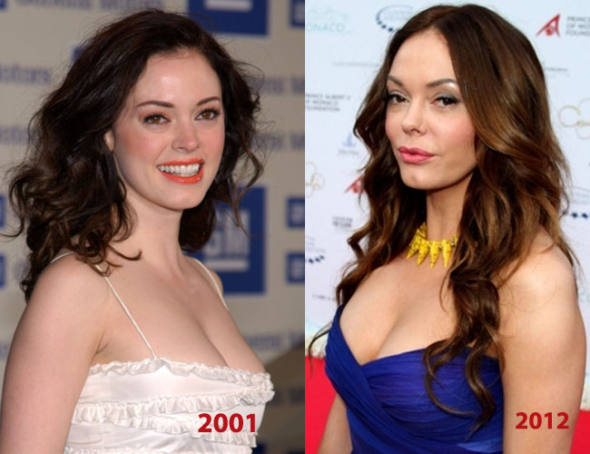 Rose McGowan Before and After